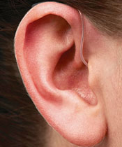 RIC_Receiver_in_Canal_in_Ear_GNReSound